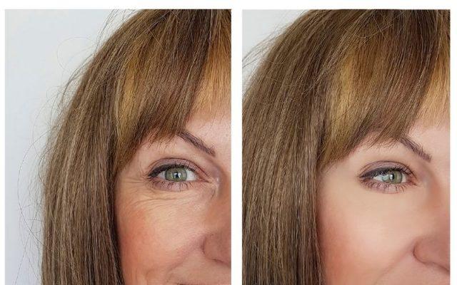benefits of Salicylic Acid for the skin