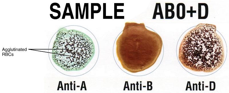 Cross_Matching_Blood_Types